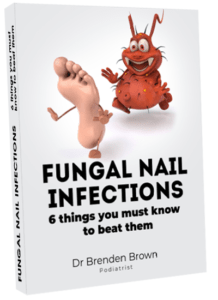 Fungal Nail Infection Report