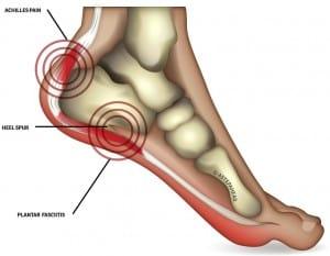 Heel pain, heel pain relief, heel pain clinic