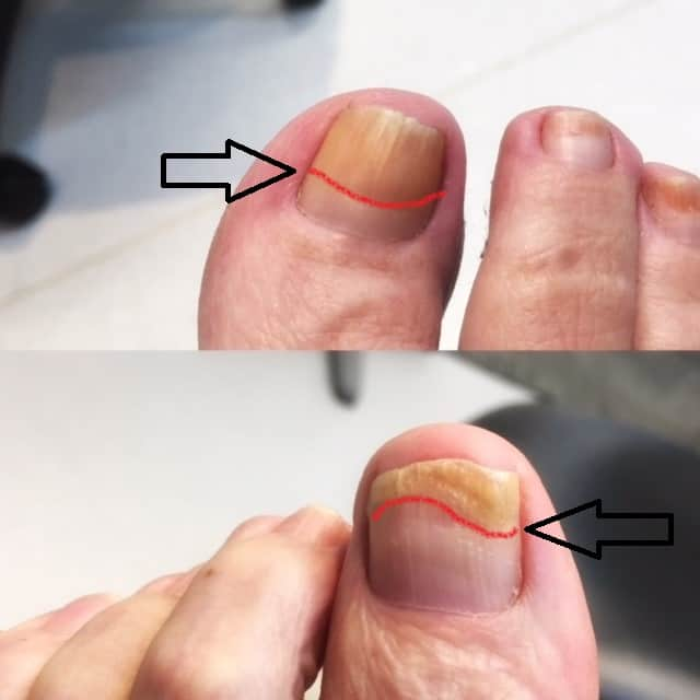 Fungal nail treatment Penrith