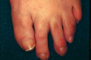 V sign of plantar plate disruption