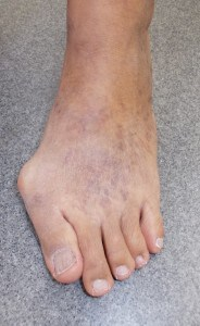 Bunions are a common complaint for many of the population