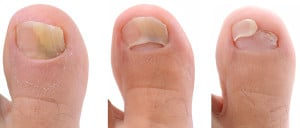 A sequence of a toe nail suffering from fungus infection.