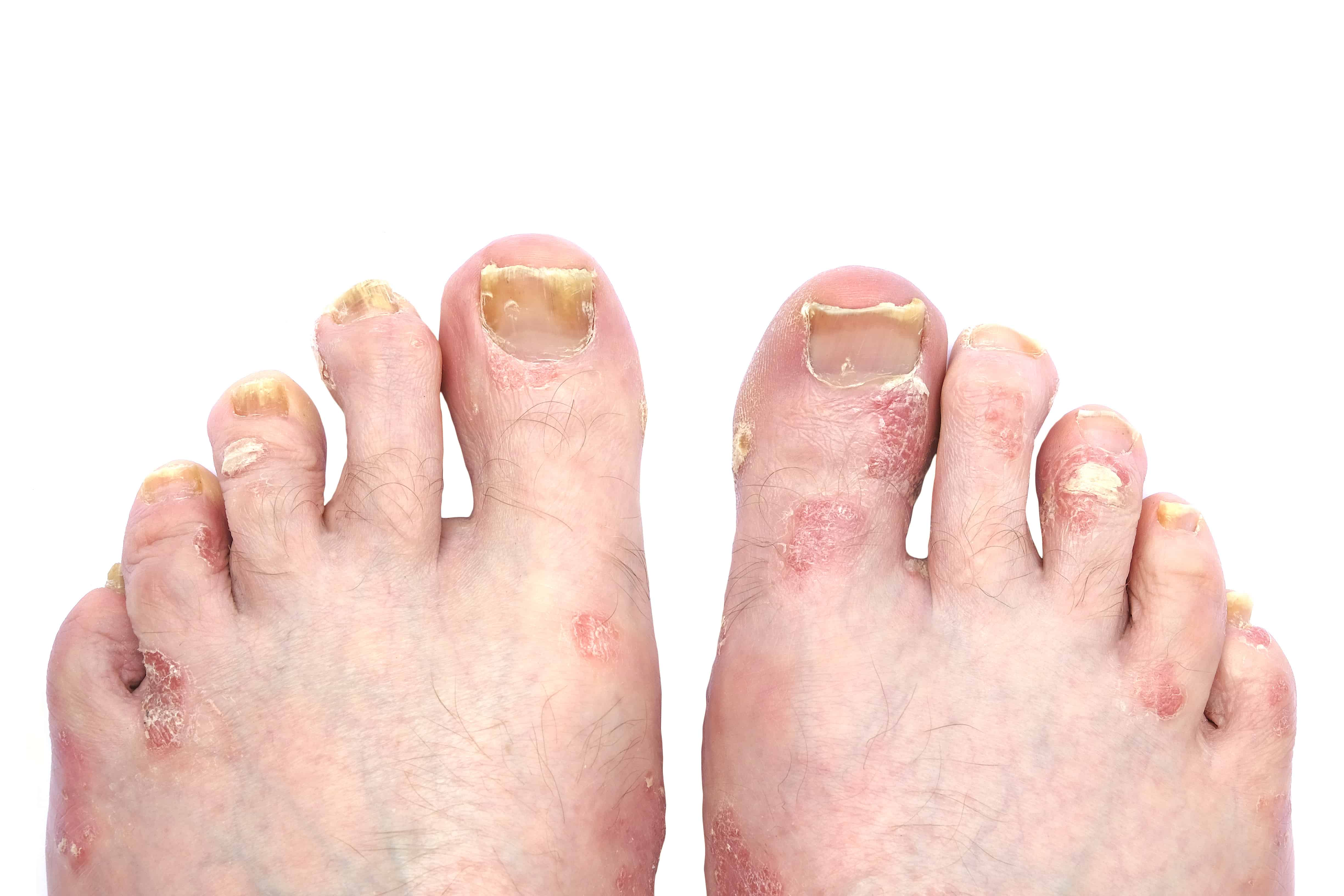 Psoriasis and Psoriatic Arthritis of the Toe Nails and Feet   A Step ...