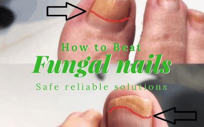 How Tanya beat unsightly Nail Fungus