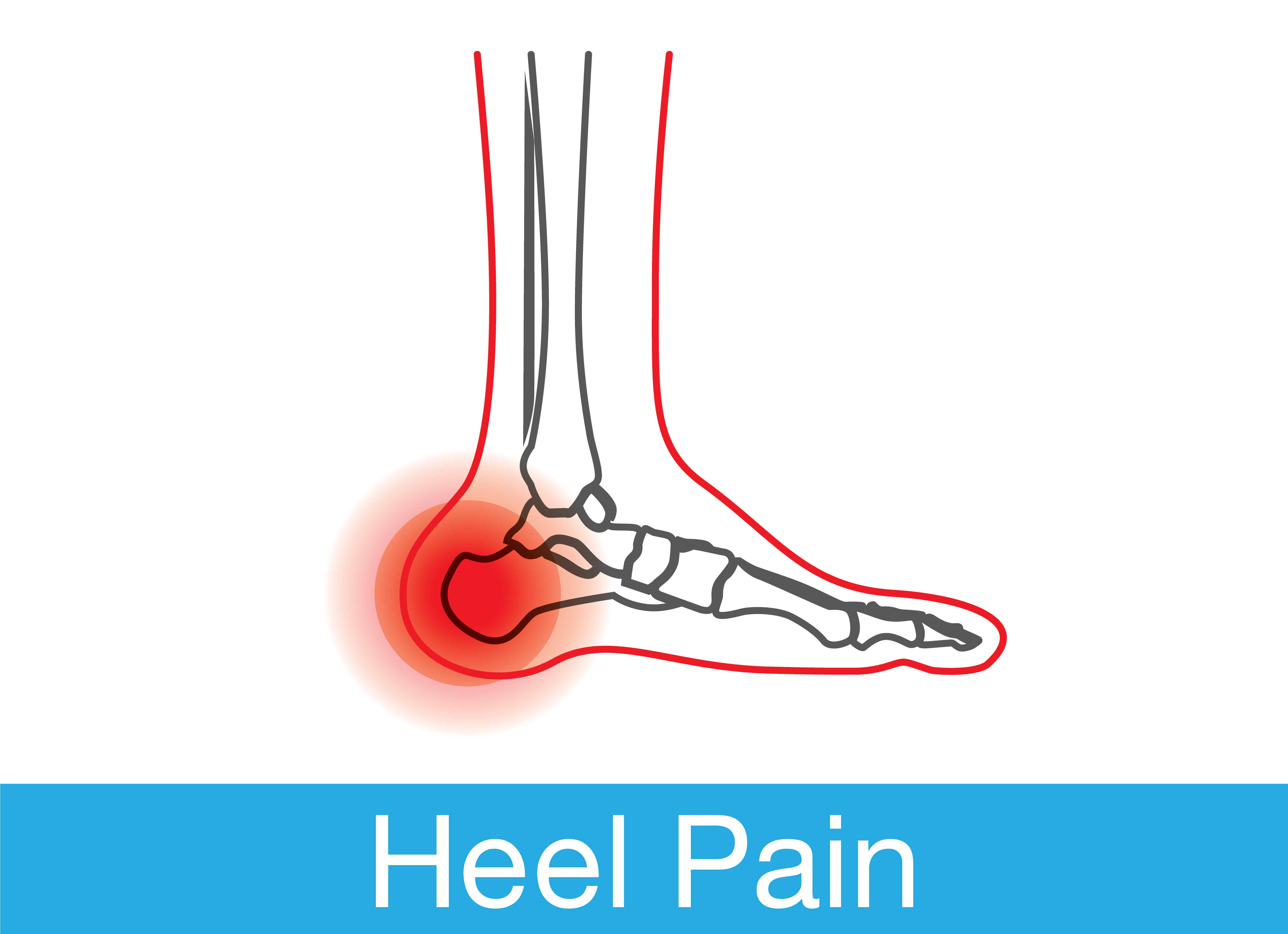 Dr Foot's favourite treatments for heel pain
