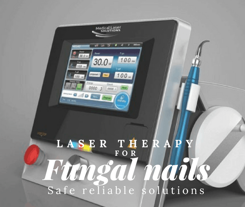 Top 4 reasons your Laser treatment for fungal nail infection won't or did not work!