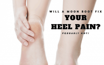 "Should I wear a ""Moon Boot"" for heel pain?"