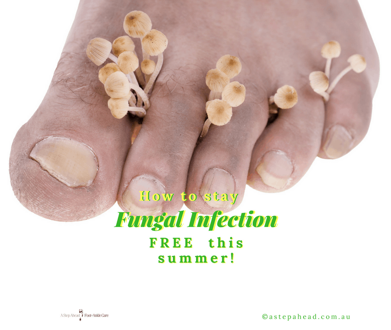5 tips for fungus-free feet this summer