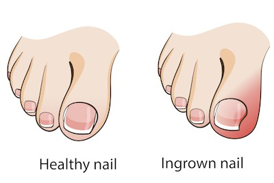 5 hacks to keep ingrown toenails at bay