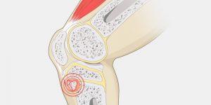 osgood-schlatter disease | kids knee pain
