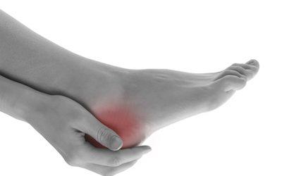 4 hacks for Achilles heel pain