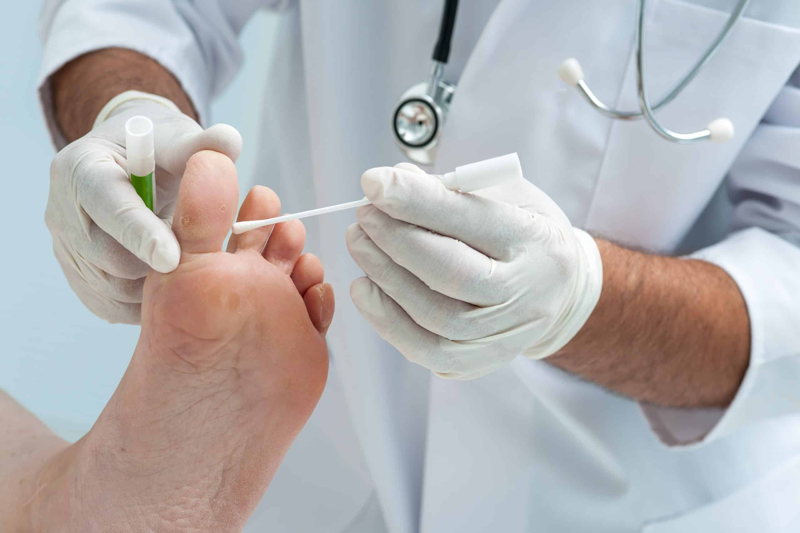 Worried you have a Fungal Nail Infection? See your GP or Podiatrist for a diagnosis.