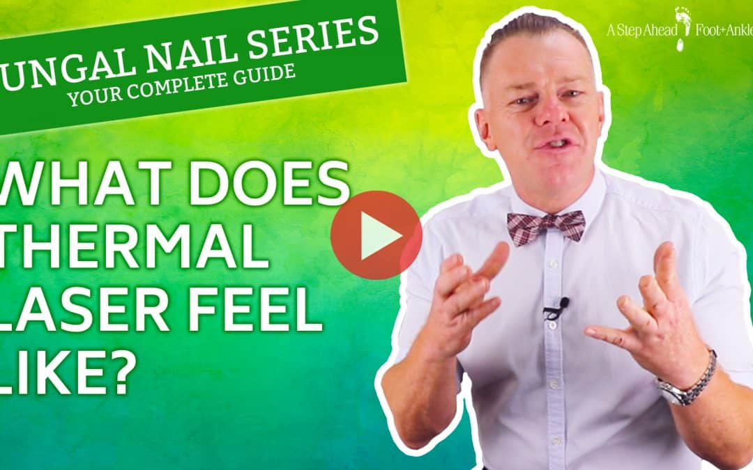 What Does Thermal Laser Feel Like? – Fungal Nail Series
