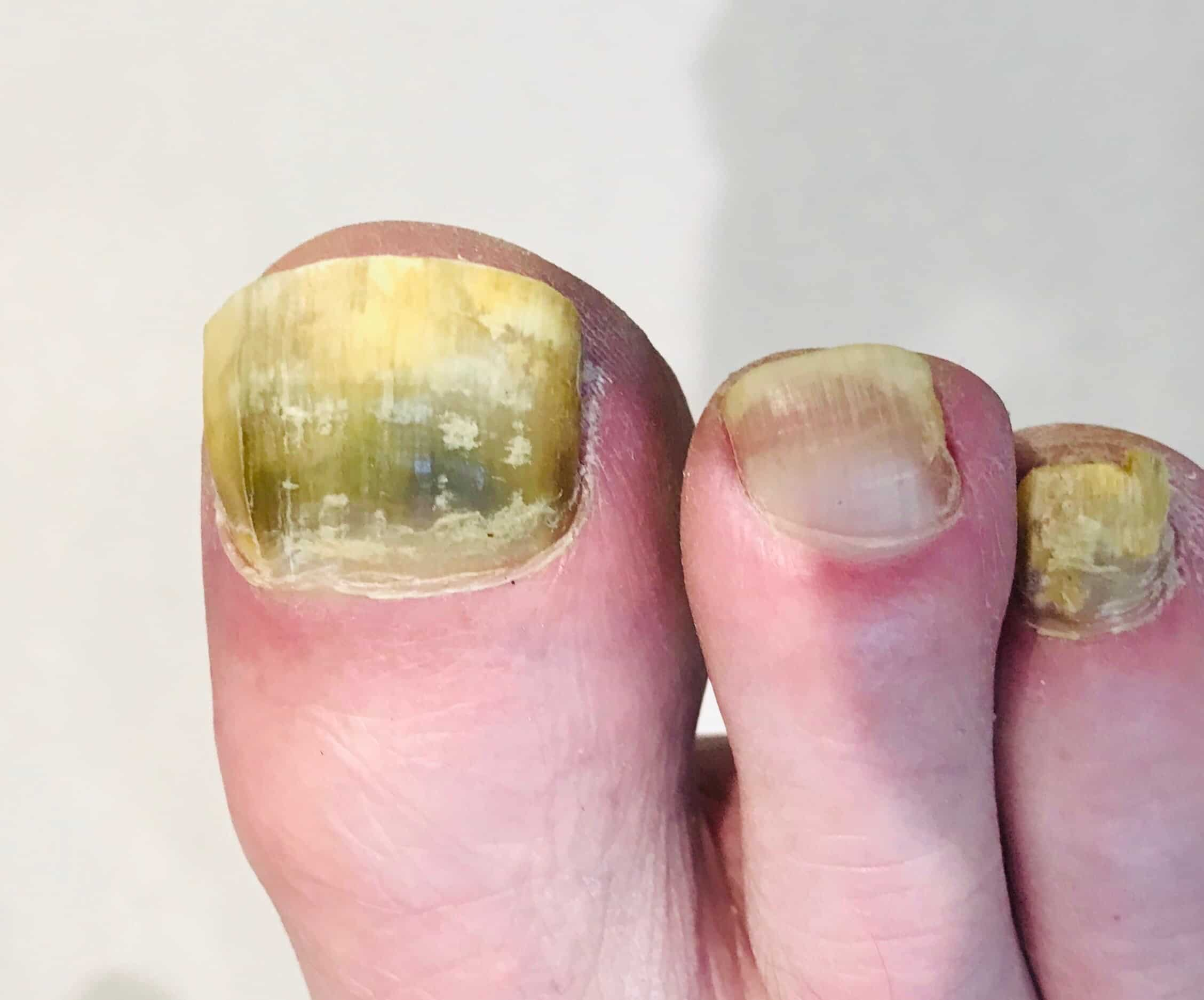 Fungal Nail Infection - 6 Questions Answered