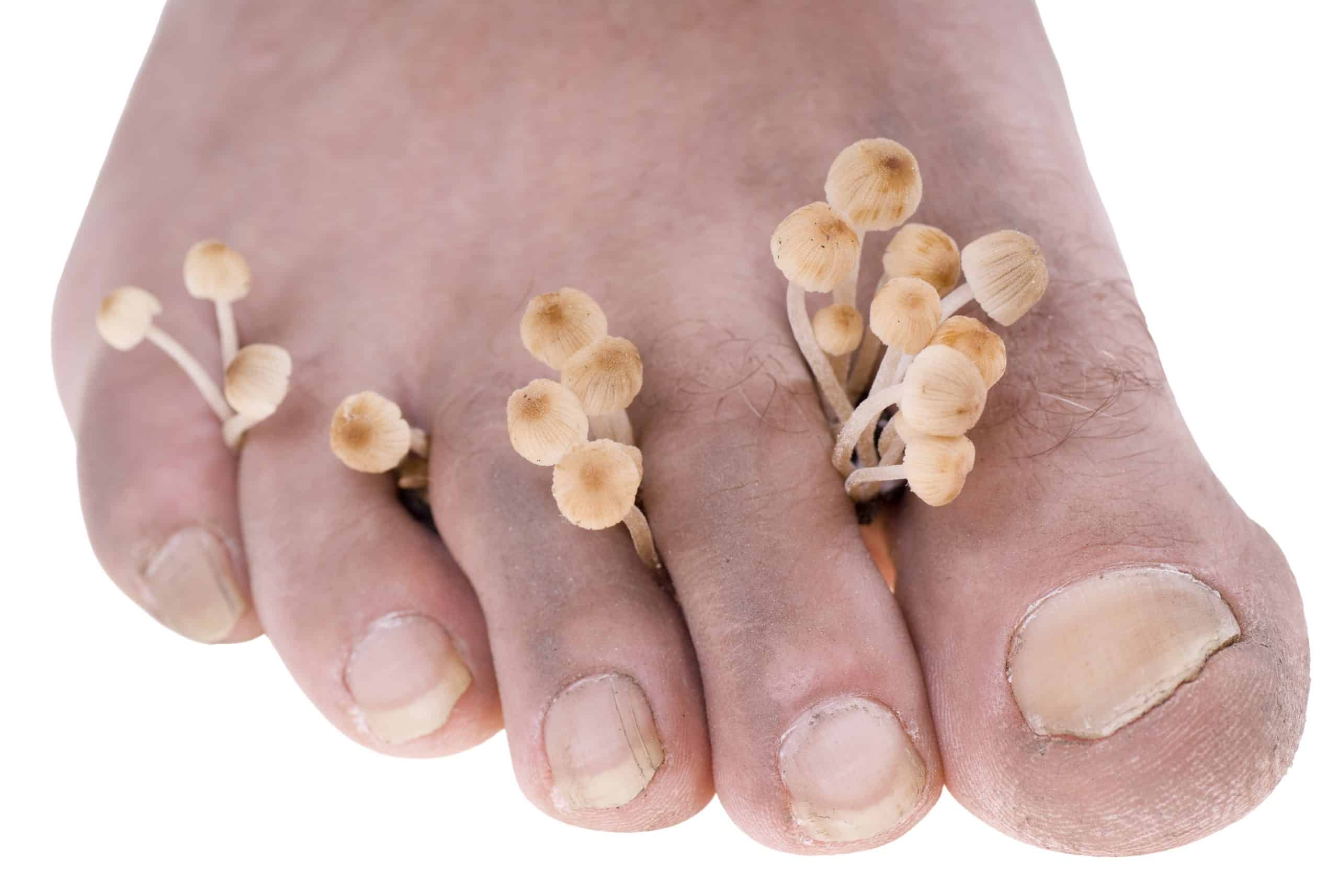 Fungal Nail Infections - 5 questions to ask