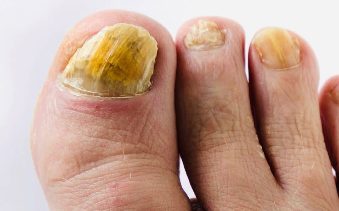 Fungal Nail Laser Therapy Mistakes Therapists Make