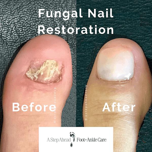 Fungal Nail Restoration