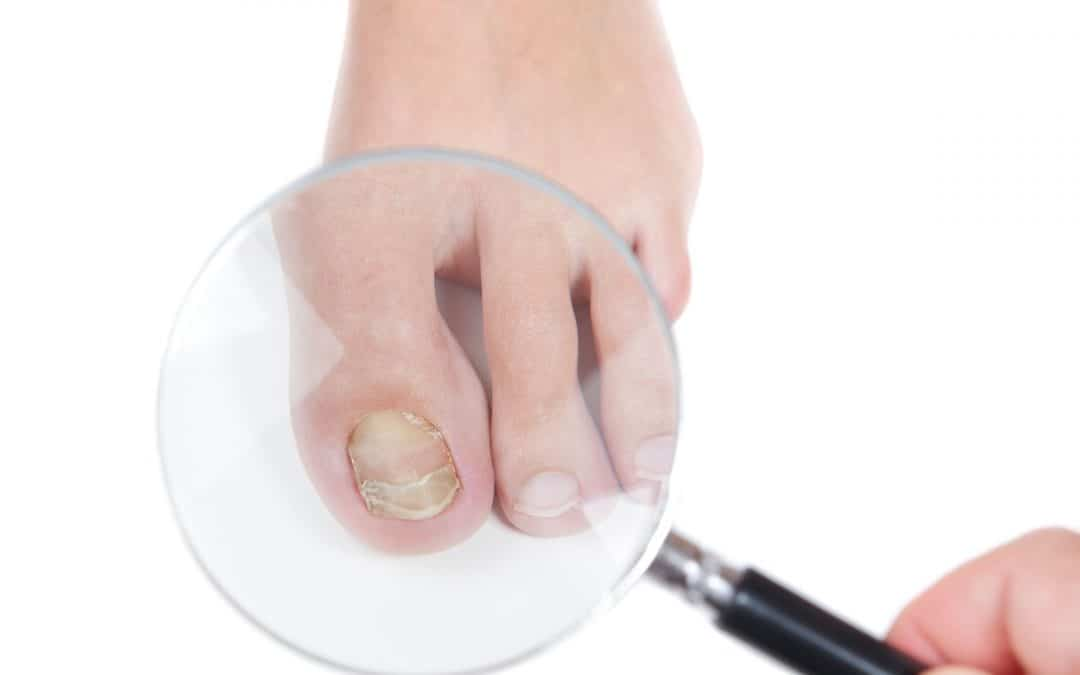 """Fungal nail with """"false negative"""" results?"""