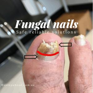 How Tanya beat unsightly Nail Fungus - 4