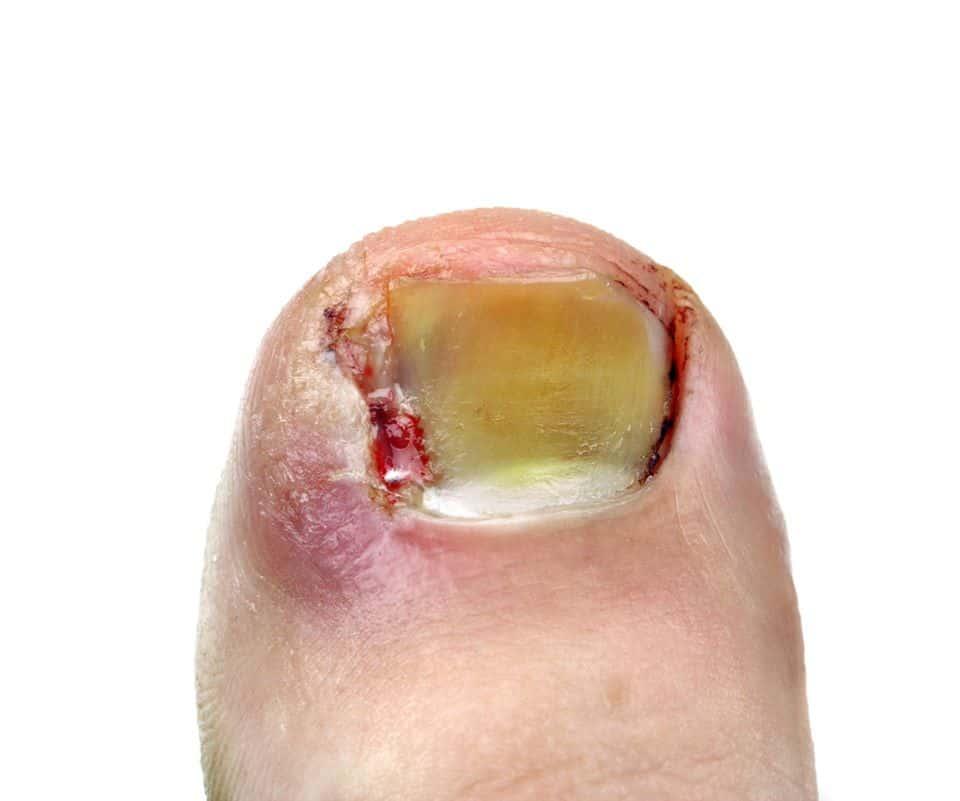 Ingrown toenails Ouchi Mumma these can hurt