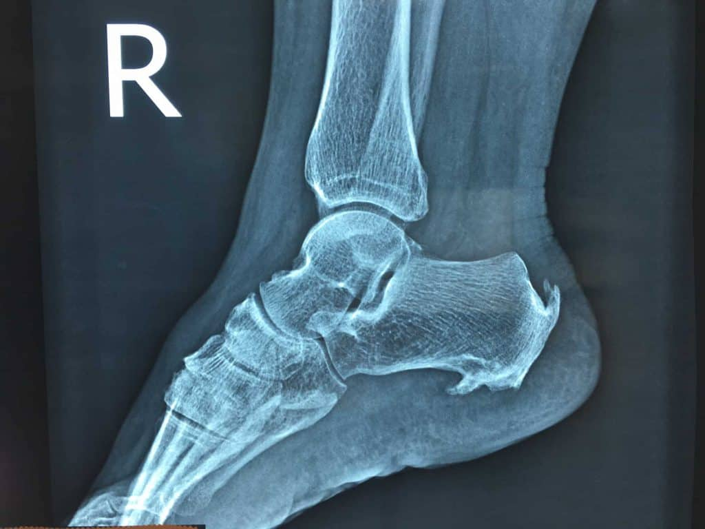 """Should I wear a """"Moon Boot"""" for heel pain? - 1"""