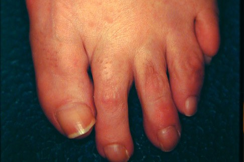The GAP between my toes has a name; Plantar plate disruption