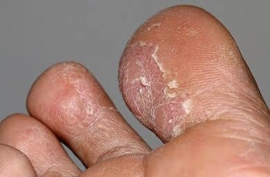Tinea - flaky skin blisters-mild