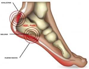 Top 6 reason your heel pain isn't getting better - UPDATED - 1