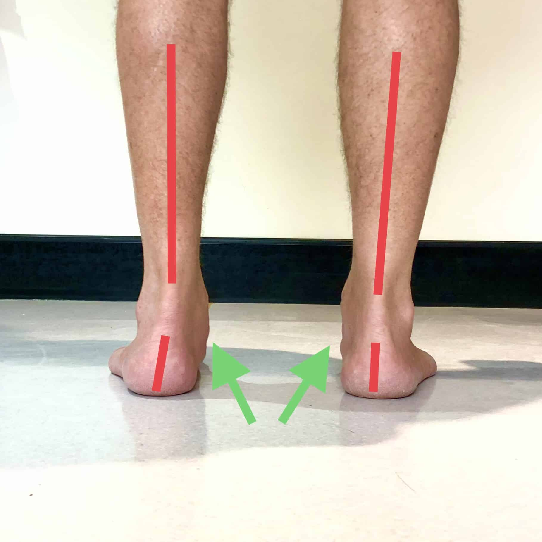 What do Fallen Arches or Flat Feet look like?