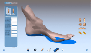 Why we make our own orthotics and how they are better - 1